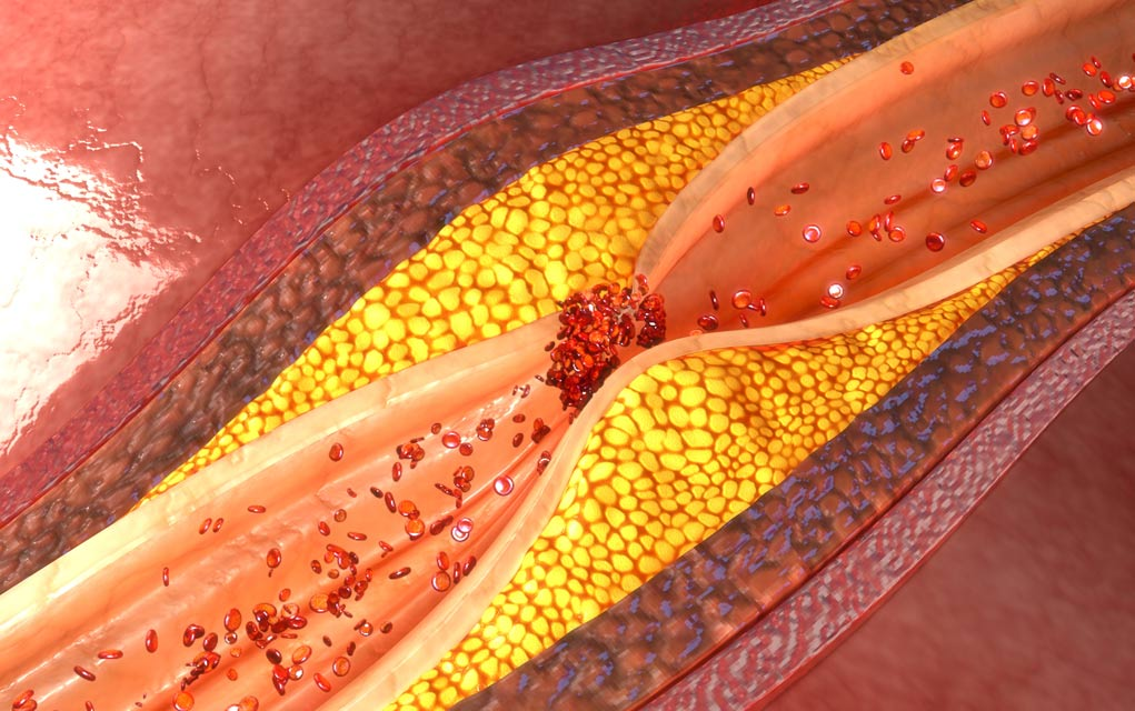 These Daily Aches and Pains Could Mean Clogged Arteries
